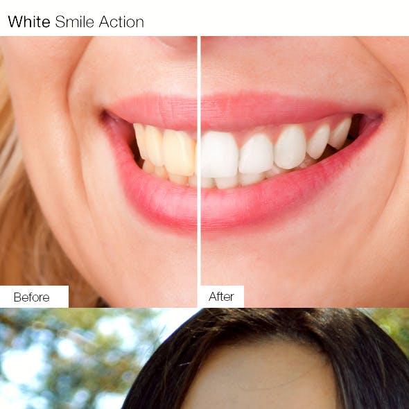 White Smile Action