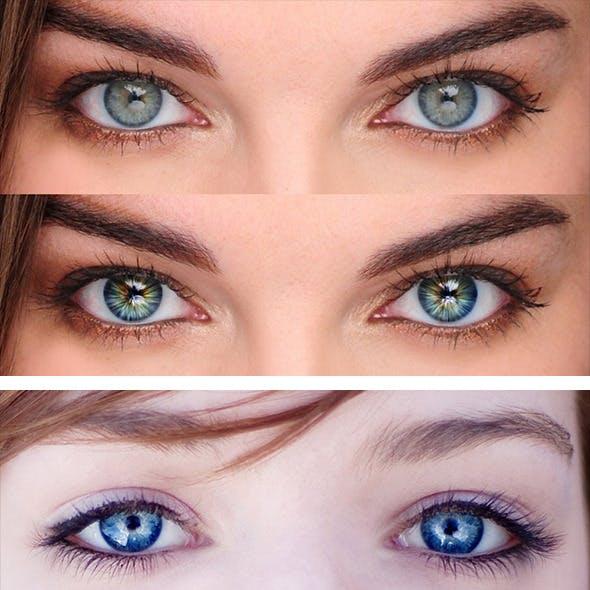 Radial Eyes