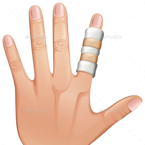 First Aid Treatment on Finger