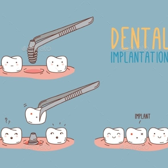 Comics About Tooth Replacement