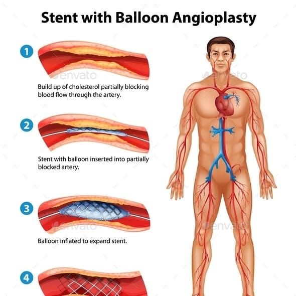 Stent Angioplasty Procedure