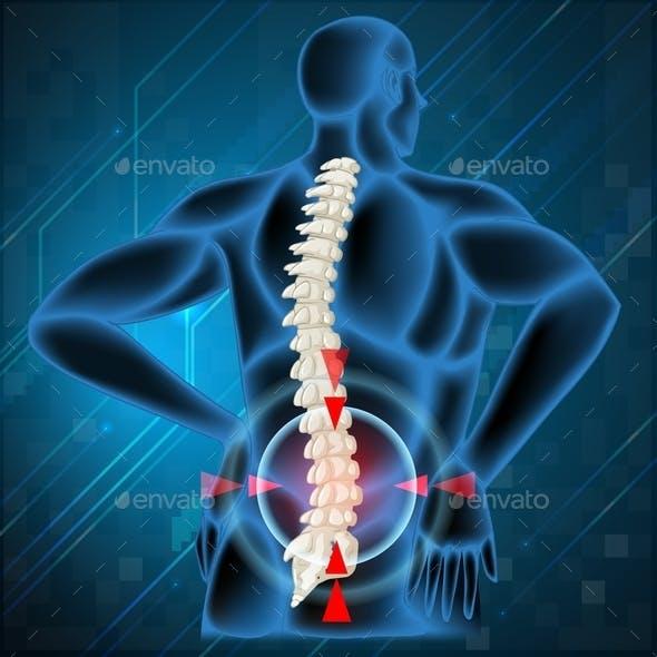 Spine Bone Showing Back Pain