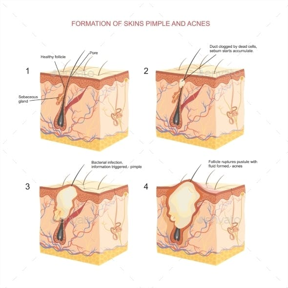 Formation of Skin Pimple and Acnes