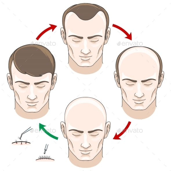 Stages of Hair Loss Treatment and Transplantation