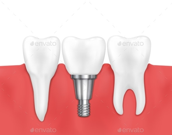 Dental Implant And Normal Tooth Vector - Miscellaneous Vectors