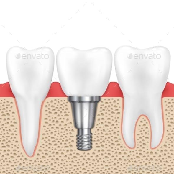 Dental Human Implant