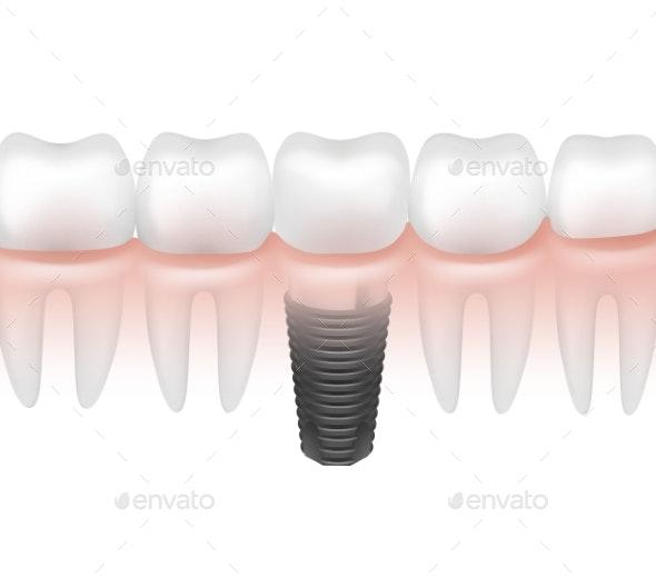 Metal Tooth Implant - Health/Medicine Conceptual