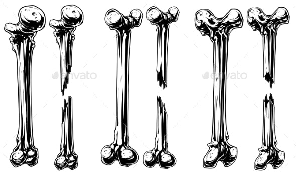 Graphic Black and White Broken Bones Vector Set - Miscellaneous Vectors