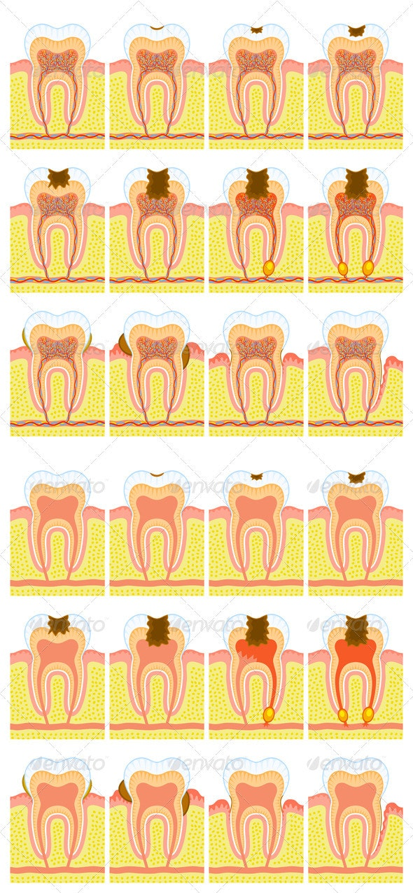 Internal structure of tooth - Health/Medicine Conceptual