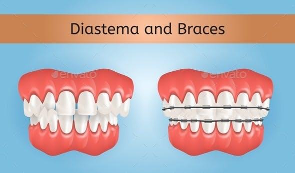 Diastema and Braces with Crossbite Teeth
