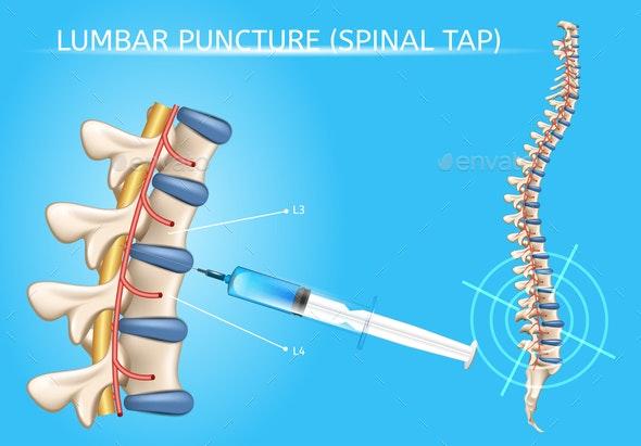 Lumbar Puncture Realistic Vector Medical Scheme - Health/Medicine Conceptual