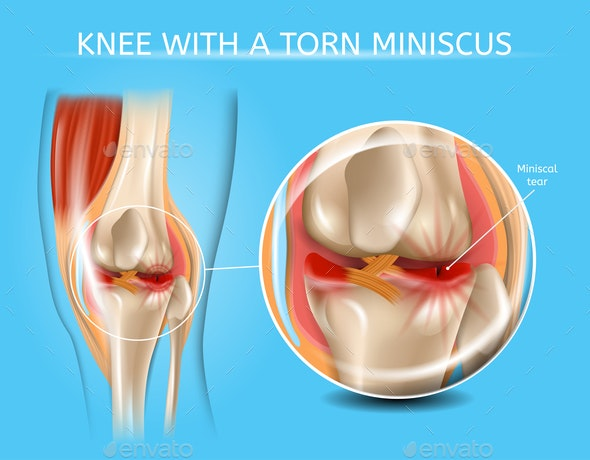 Injured Knee Joint with Torn Meniscus Vector Chart - Health/Medicine Conceptual