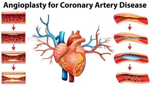 Diagram Showing Angioplasty For Coronary Artery Disease - People Characters