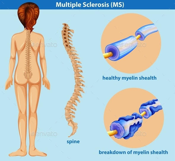 An Education Poster Of Sclerosis - People Characters