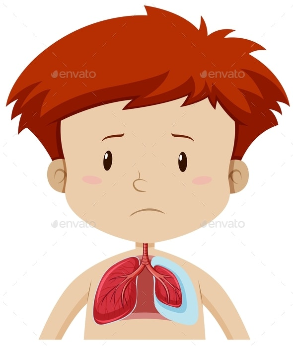 Kid With Lung Disease - People Characters
