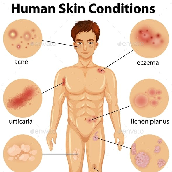 Various Human Skin Conditions