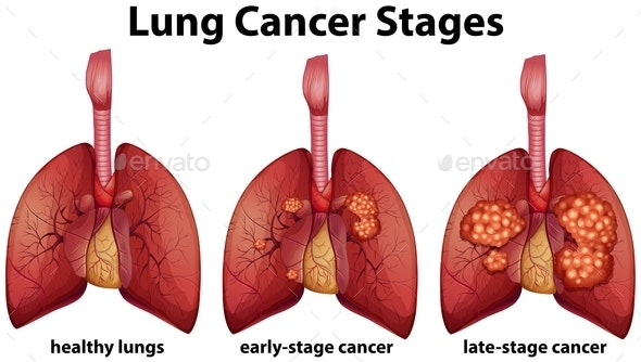Diagram Showing Lung Cancer Stages - Health/Medicine Conceptual