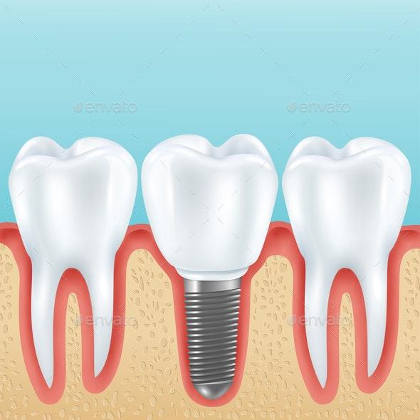 Dental Implant Realistic Illustration - Health/Medicine Conceptual