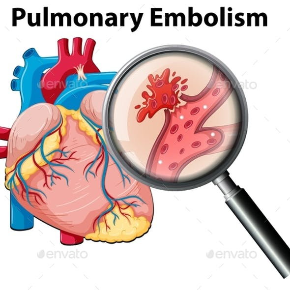 Human Anatomy Pulmonary Embolism