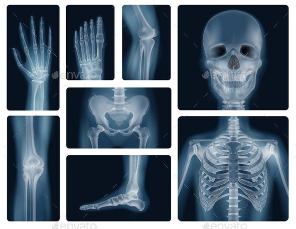 Human Bones Realistic X-Ray Shots - Health/Medicine Conceptual