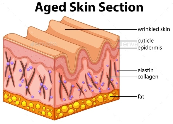 Aged Skin Section Diagram - Health/Medicine Conceptual