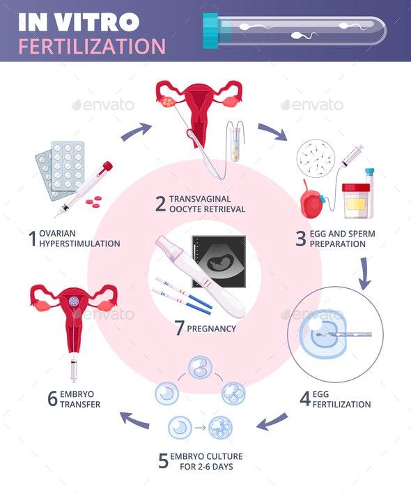 Flat In Vitro Fertilization IVF  Infographics - Health/Medicine Conceptual