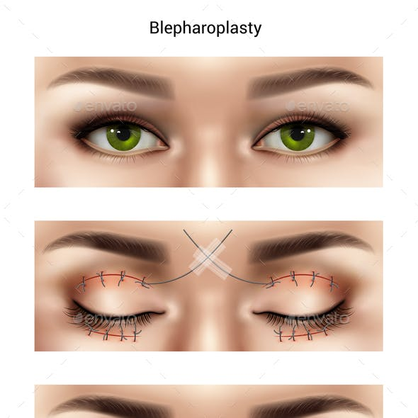 Blepharoplasty Suture Stitches Composition