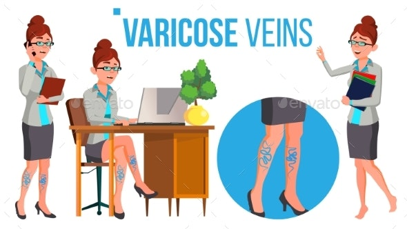 Female Legs In High Heel Shoes With Varicose Veins - Health/Medicine Conceptual