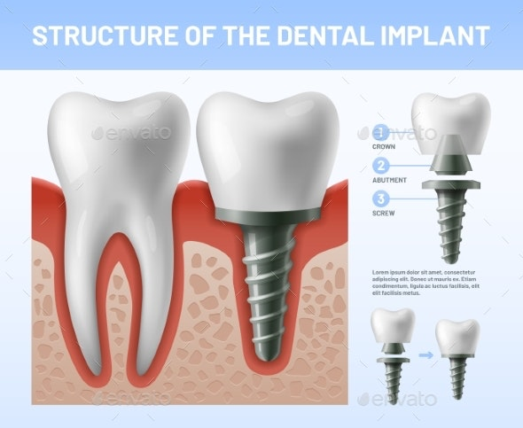 Dental Teeth Implant - Health/Medicine Conceptual