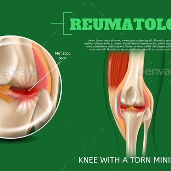 Realistic 3d Illustration Knee with Torn Miniscus