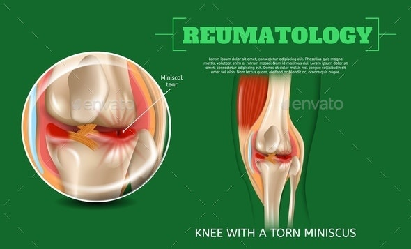 Realistic 3d Illustration Knee with Torn Miniscus - Health/Medicine Conceptual