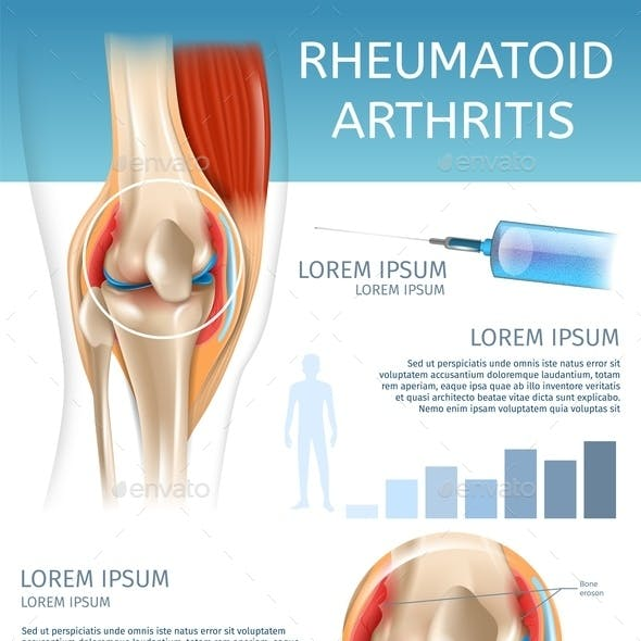 Infographic Treatment Method Rheumatoid Arthritis
