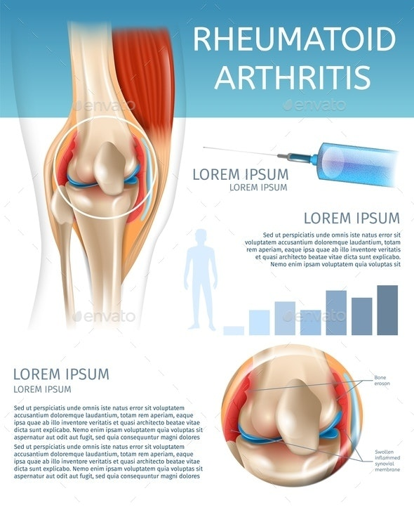 Infographic Treatment Method Rheumatoid Arthritis - Health/Medicine Conceptual