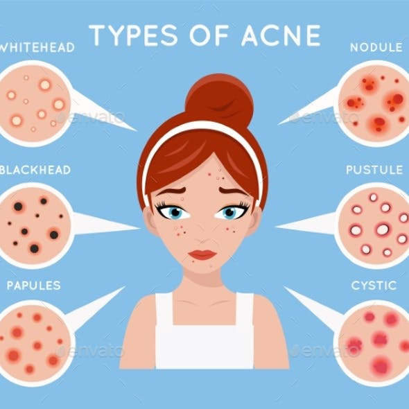 Face Acne Women Skin Cosmetic Care