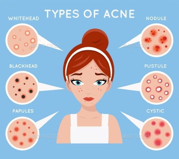 Face Acne Women Skin Cosmetic Care - People Characters