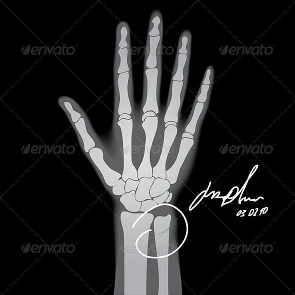 Brooken Hand