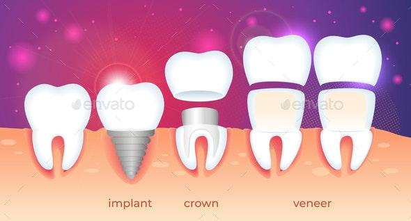 Orthodontic Restoration Implant Crown and Veneer - Health/Medicine Conceptual