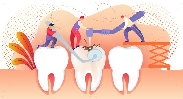 People Drilling Unhealthy Tooth with Caries - People Characters
