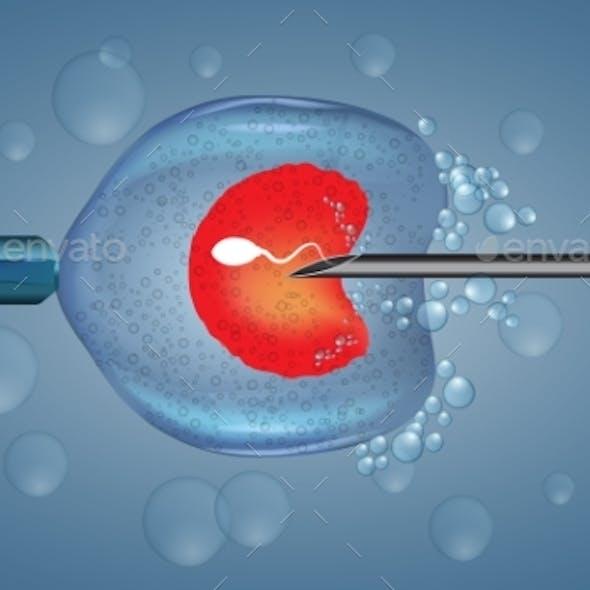 In Vitro Fertilization İnjection Artificial