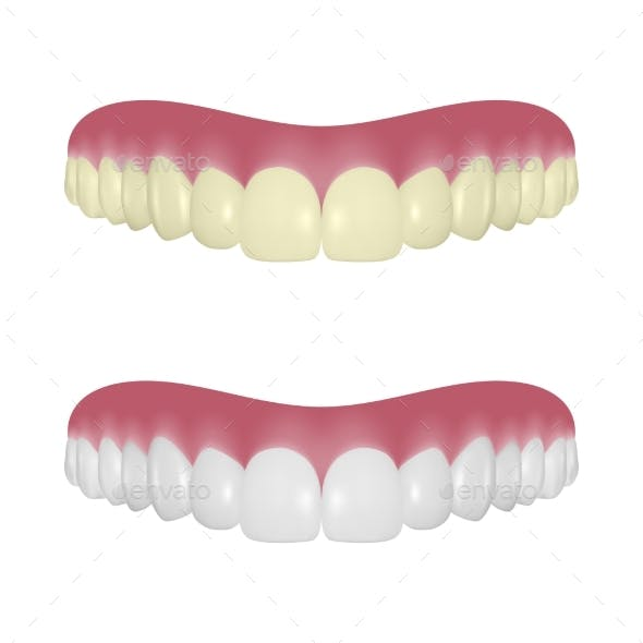 Vector Realistic Render Denture Set Closeup