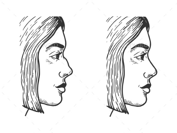 Woman Face Rhinoplasty Skirt Sketch Vector - People Characters