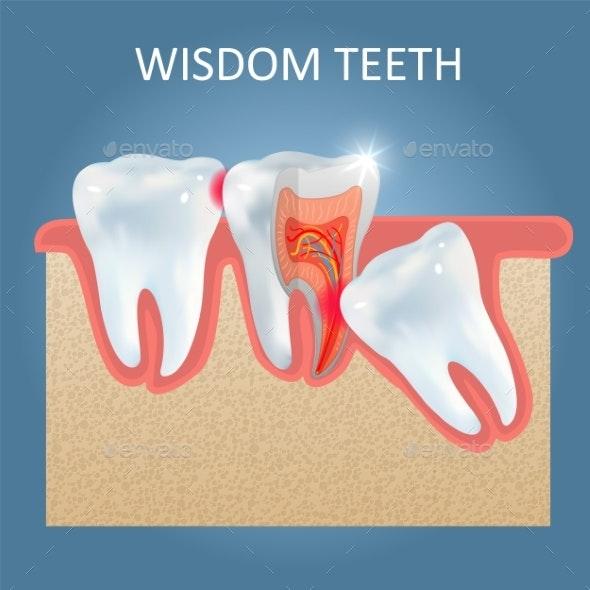 Wisdom Teeth Problems Vector Poster Design - Health/Medicine Conceptual