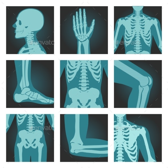Set of X-Ray Shots Pictures of Human Body Parts - Health/Medicine Conceptual