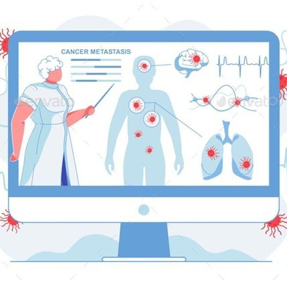 Doctor Showing Cancer Metastasis Flat Illustration