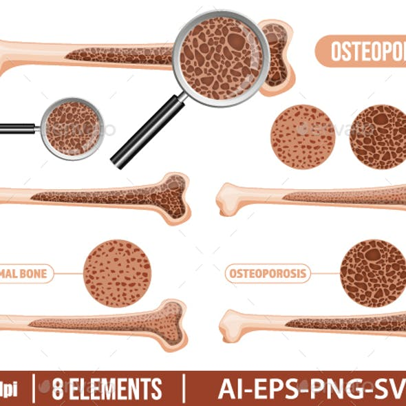 Osteoporosis bone clipart vector design illustration. Osteoporosis set. Vector Clipart Print