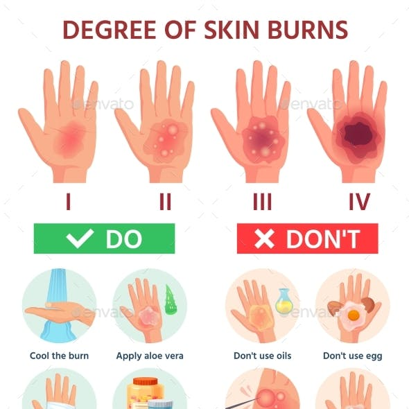 Burns Degree. First Aid for Burn Wound. Fire