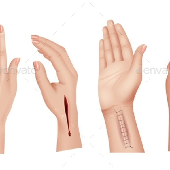 Surgical Stitches on Hands