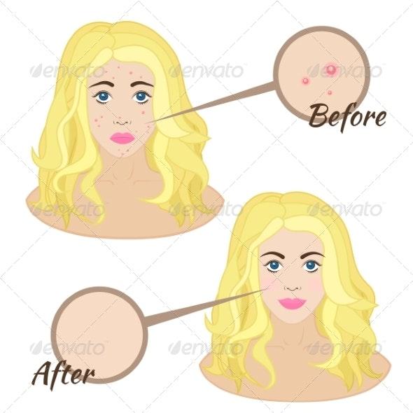 Girl Face with Acne - Health/Medicine Conceptual